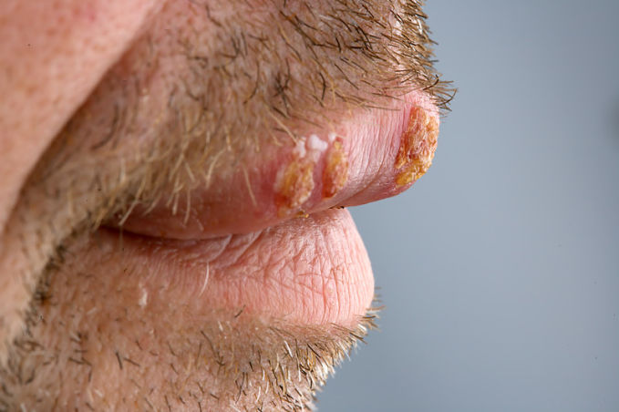 An explanation of the six cold sore stages and the symptoms of each stage