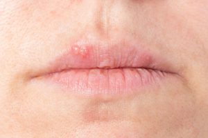 An explanation of what causes cold sores